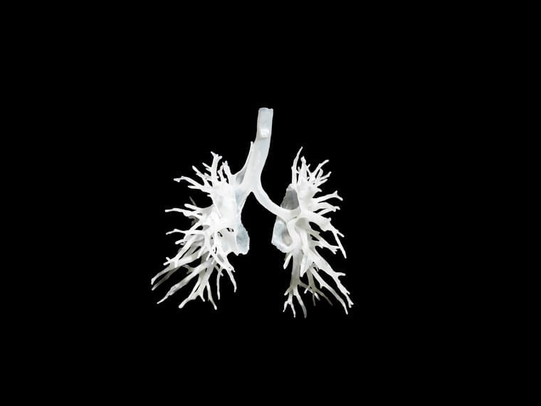 Image of the internal structure of the lungs