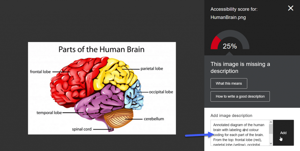 Screenshot showing the Instructor Feedback panel in Ally, a diagram of a brain is shown, the accessibility rating is on the right and a text entry field for a alternative description is provided