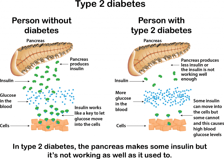 Background | Type II Diabetes