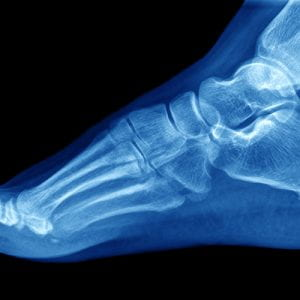 Want to be a podiatrist?