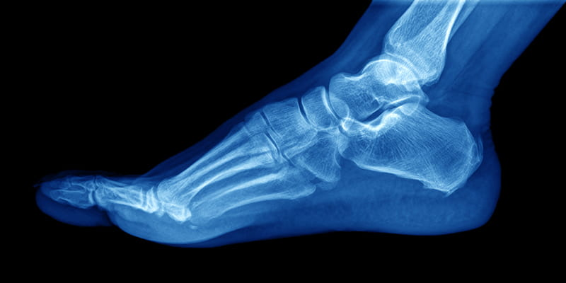 an Xray of the foot
