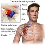 Is there an association between Thoracic Outlet Syndrome and anatomical variation?