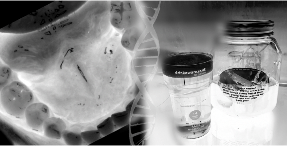 An X-ray of a mouth; negative images of a pint glass and an ashtray in a jar