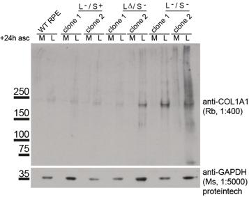 Immunoblots showing defective procollagen secretion