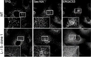 Image showing how loss of TANGO1 expression affects the ERGIC
