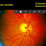 Screenshot from a FENETRE webinar