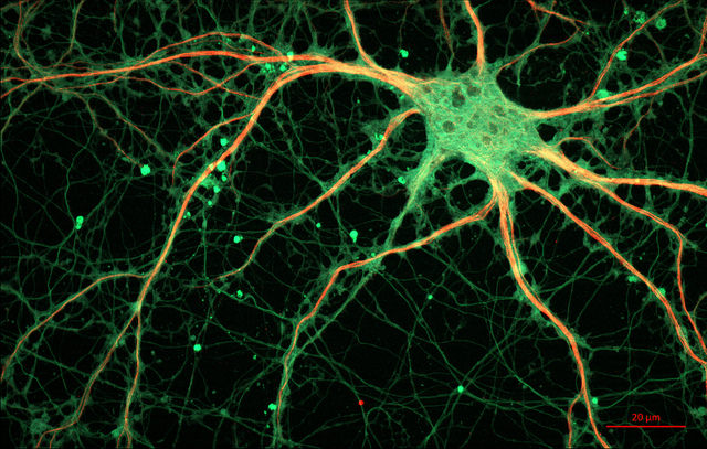 Cultured Rat Hippocampal Neuron by ZEISS Microscopy (2016)