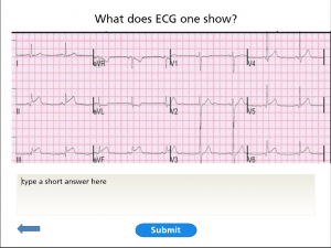 """[Image including text description.] The image shows an ECG (echo cardio-graph) sheet and asks the students """" What does ECG One Show?"""". There is a small open text box below the ECG graph"""