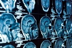Brain scan re-size