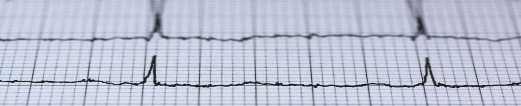 Decorative: Image Desription: [A picture of graph paper with the blackline showing a pulse or heart beat]