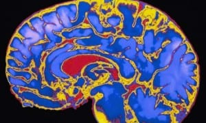 MRI-scan-of-human-brain-008