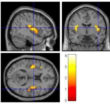 Fmri Research On Eating Disorders The Role Of The Insula