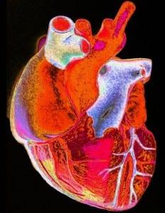 B0005637 Enhanced image of a human heart