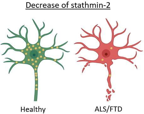neurons ALS/FTD