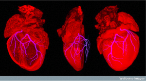 Mouse heart showing position of coronary arteries