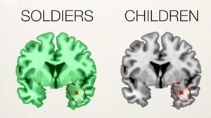 Parts of the brain affected by abuse and trauma.