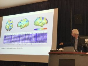 Jem Hebden describing optical brain imaging