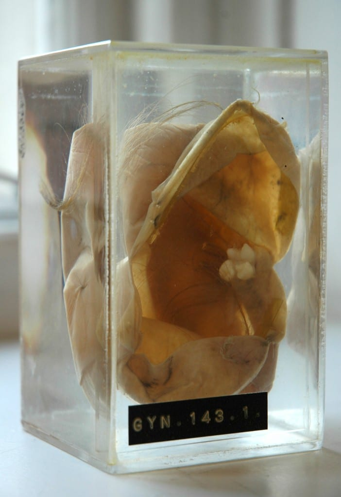 Teratoma with Tooth and Hair