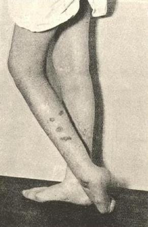 "Image showing self-inflicted burns in a ""hysterical"" patient, from John Collie's Malingering and Feigned Sickness (1913)"
