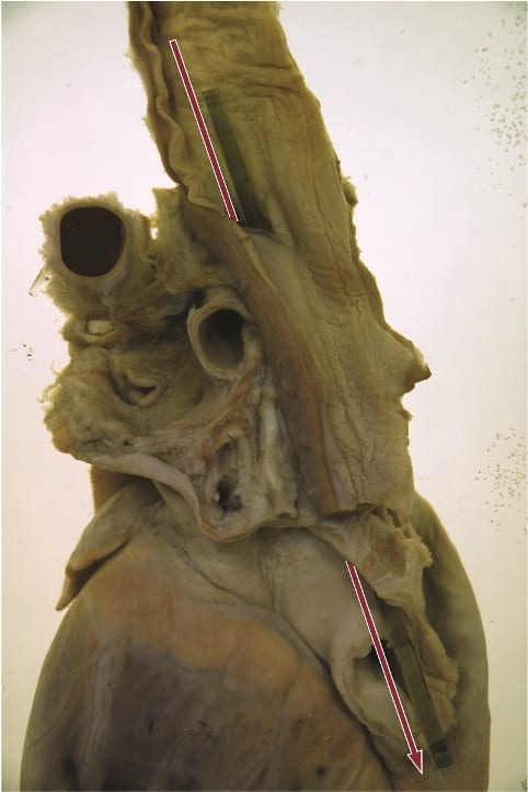 Fatally ruptured oesophagus, caused by the sword swallower's sword. Photograph Gemma Angel, UCL Pathology Collections.
