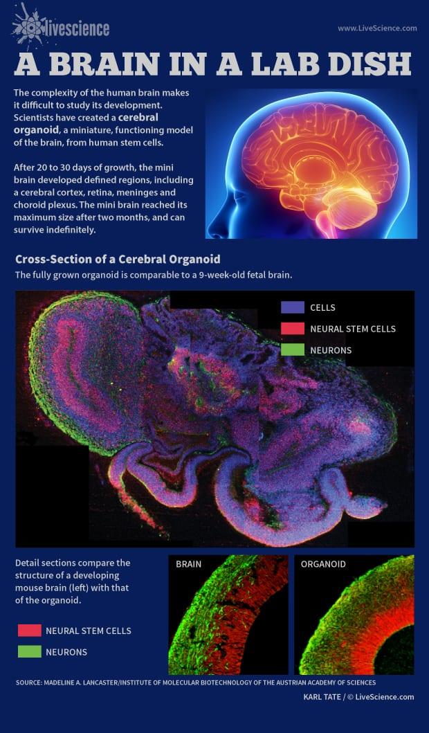 cerebral-organoid-model-brain-130827a-02