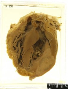 Diseased Human Heart- UCL Pathology Collection