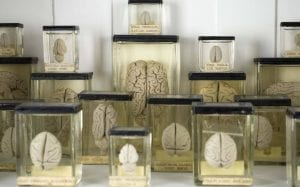 Gordon Museum Brain Collection at the Grant Museum at UCL (Image credit: Grant Museum)