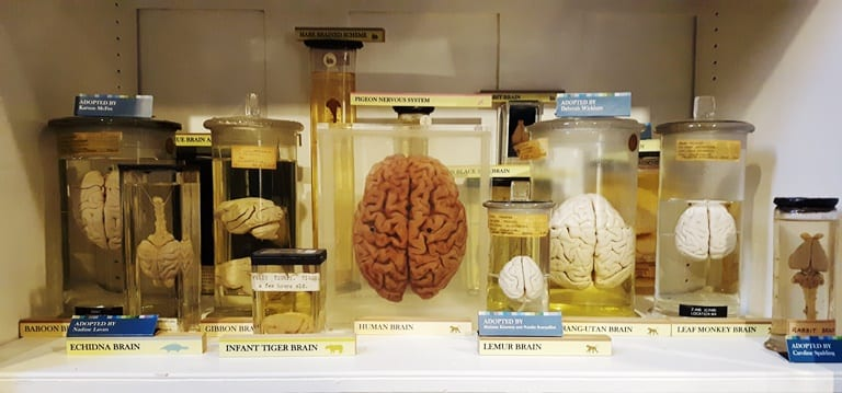 A human specimen (centre) has been added to the Grant Museum's brain comparative anatomy display