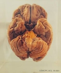 A human brain from UCL Pathology Collection - now on display in the Grant Museum