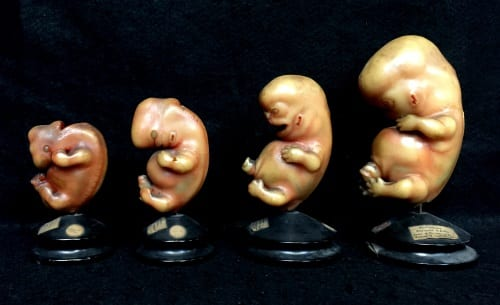 LDUCZ-Z430 Ziegler Studio wax model series showing the development of the external form of human embryos