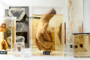 Specimens on display at UCL Pathology Museum
