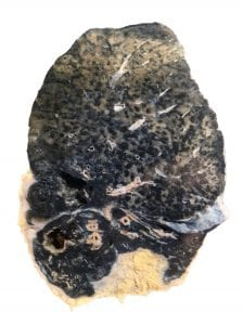 A cross-section of human lung showing coal worker's pneumoconiosis tuberculosis