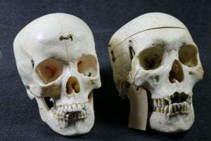 Skulls UCL.16.009 and UCL.16.018