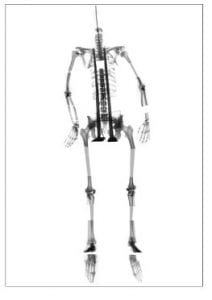 X-ray image of a skeleton held together by metal rods and hinges