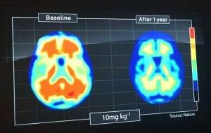 MRI_scan_mummery