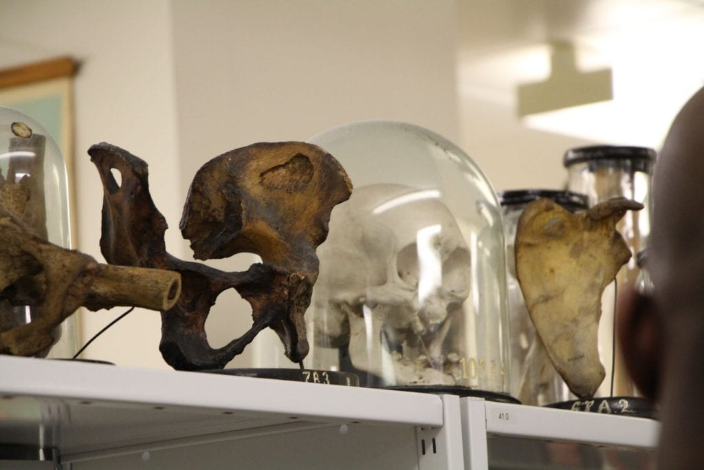 A human skull in a glass Cloche and human bones sections