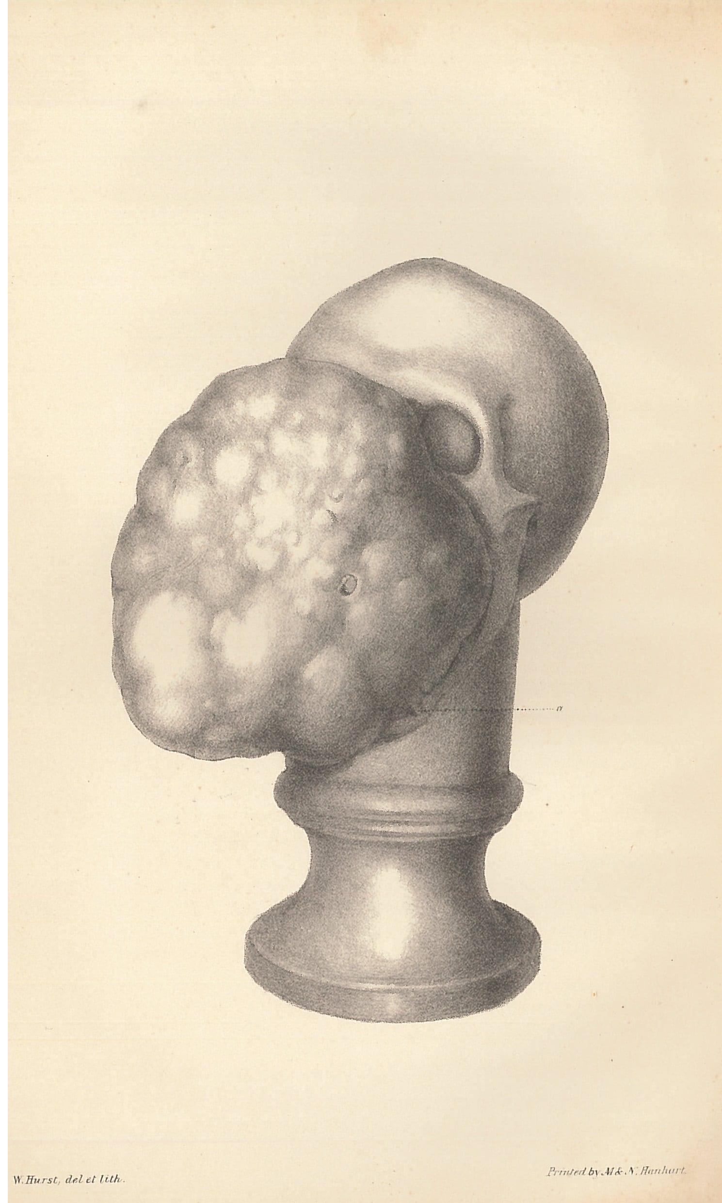 Skull Shiel