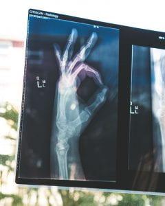 OK sign X-ray
